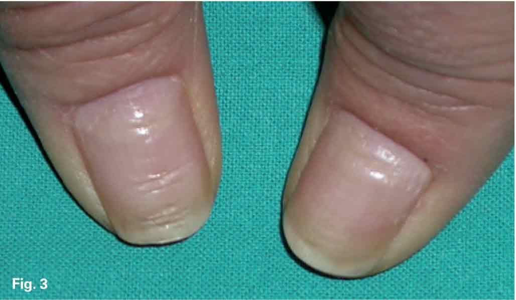 Boro el más a atopicheskom la dermatitis a los niños