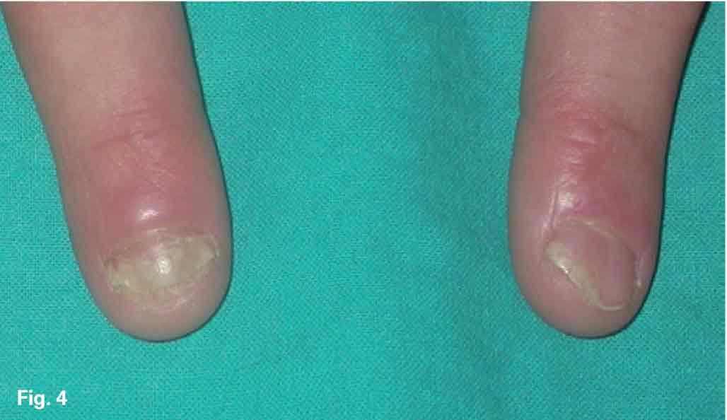 Las causas posibles atopicheskogo de la dermatitis